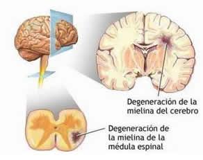 farmaco-esclerosis