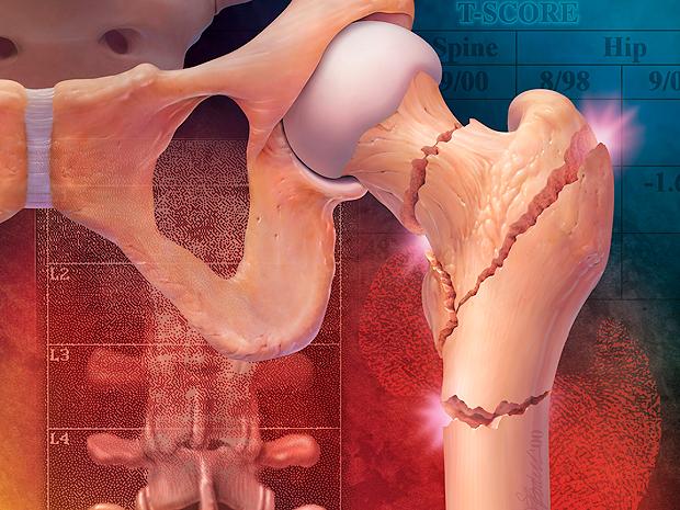 Osteoporosis-fracturas