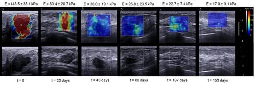 ultrasonido-cancer