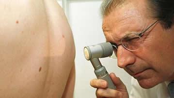 cancer-melanoma