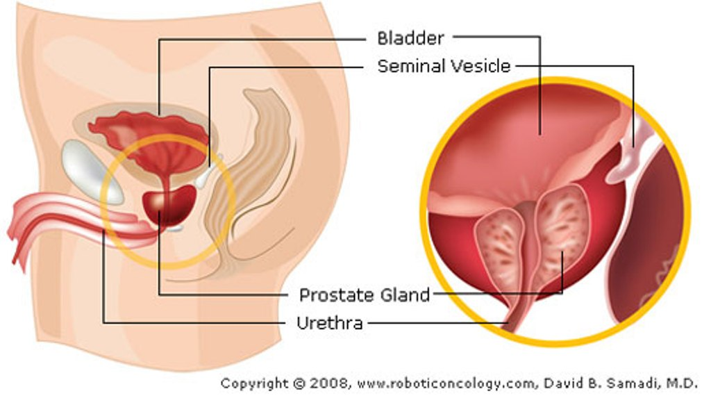 Relationship Between The Prostate Cialis