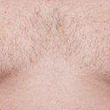 Male thorax showing early stage Gynecomastia